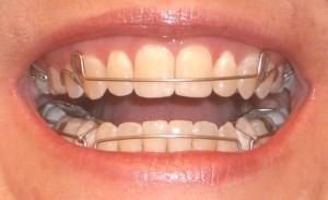 Sfaturi utile atunci când porți aparat dentar